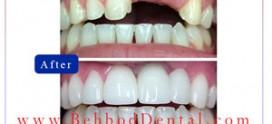 چه موقع از ایمپلنت دندان استفاده می شود؟