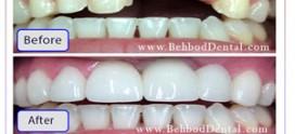 سوالات متداول ایمپلنت دندان