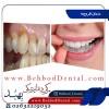 عوارض باورنکردنی دندان قروچه!!!!!!!