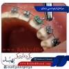 اینجا با مراحل ارتودنسی دندان آشنا شوید!
