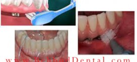 فرایند نگهداری از ایمپلنت های دندانی