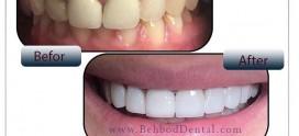انواع کامپوزیت دندان و مزایای آن را بشناسید