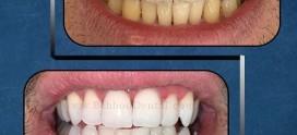 با روش های بلیچینگ دندان می توانید بلند بخندید