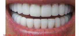 هزینه لمینت دندان در سال ۹۸