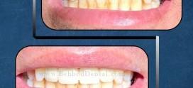 ترمیم شکستگی دندان
