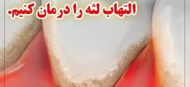 درمان التهاب لثه