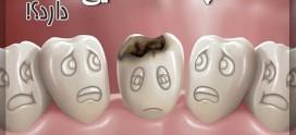 ترفندهای ساده برای جلوگیری از پوسیدگی دندان