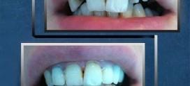بهترین دندانپزشکی