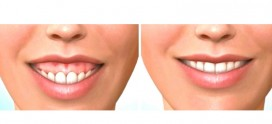 جدیدترین روش های درمان لبخند لثه ای
