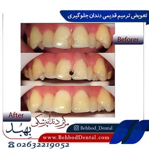 تعویض ترمیم قدیمی دندان