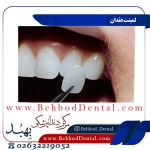 لمینت-دندان
