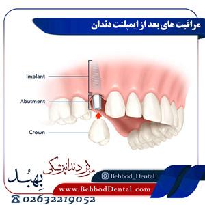 مراقبت-های-بعد-از-ایمپلنت-دندان