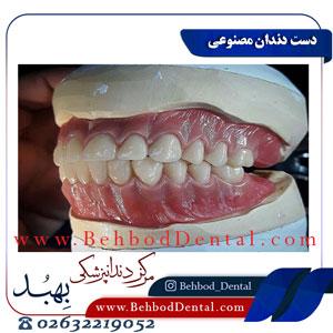 دست-دندان-مصنوعی