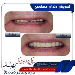تعویض دندان مصنوعی
