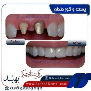 پست و کور دندان