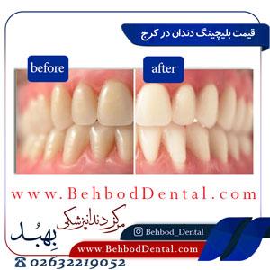 قیمت-بلیچینگ-دندان-در-کرج