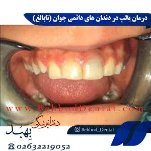 درمان پالپ در دندان های دائمی جوان (نابالغ)