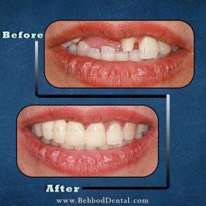 نمونه پروتز دندان کلینیک دندانپزشکی بهبد