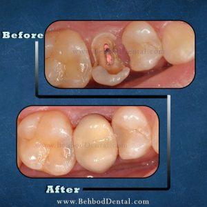 فضای نگه دارنده در ناحیه دندان های شیری