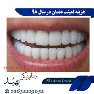 هزینه لمینت دندان در سال 98